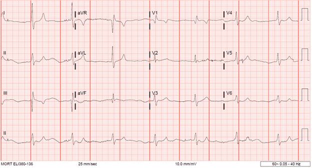 EKG Series